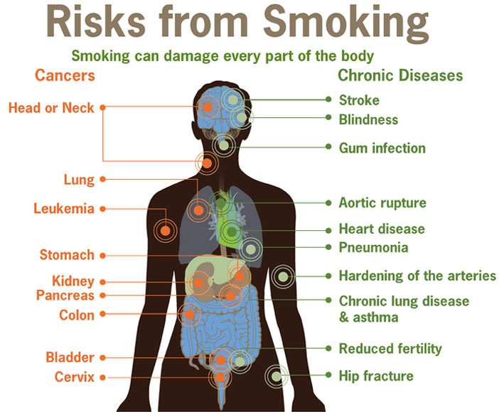 list of diseases caused by smoking conditions caused by