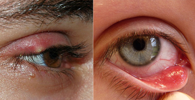 eyelid irritation #11