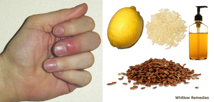 Home Remedies for Whitlow | Reduce Risk of Whitlow